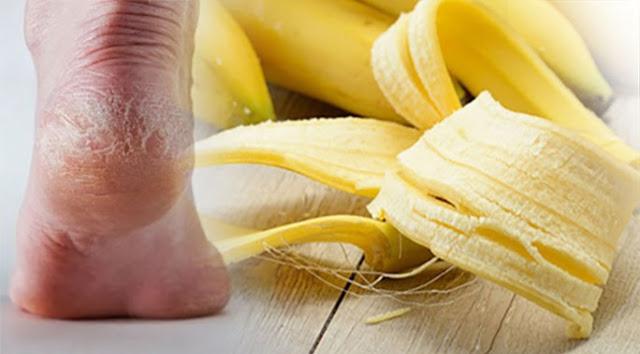 สูตรลับแก้ส้นเท้าแตก กล้วยหอม