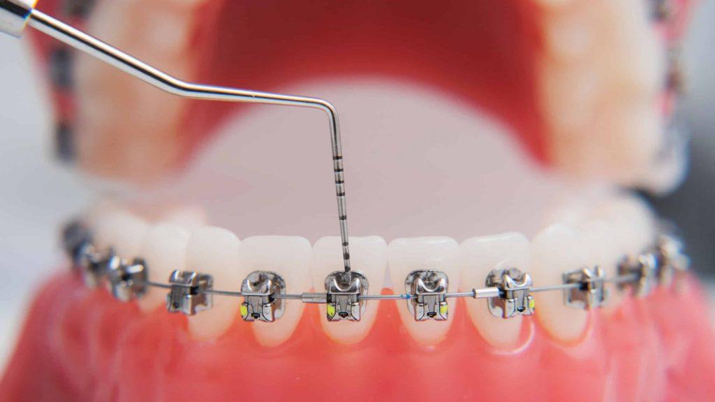 การจัดฟัน-ฟันซ้อนเกยทับกัน
