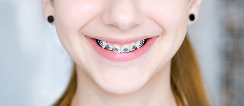 การจัดฟัน แบบโลหะ (Bracket Brace)
