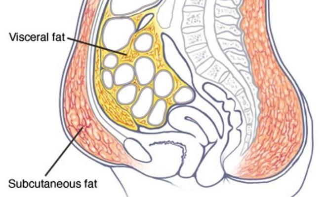 Visceral Fat ไขมันในช่องท้อง