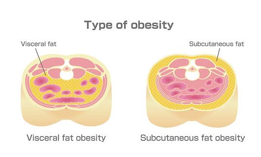 ระดับของ Visceral Fat ร